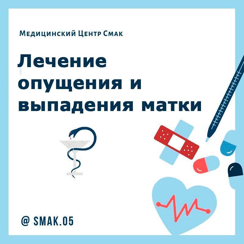 Лечение опущения и выпадения матки в Центре Медицины СМАК