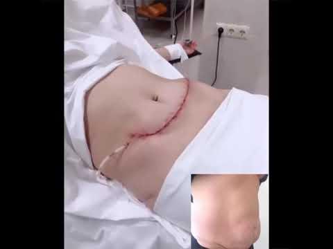 Абдоминопластика, леваторопластика, сфинктеропластика, подтяжка и фиксация выпавшей матки