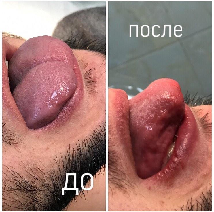 Пластика языка
