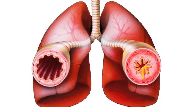 Что такое бронхиальная астма